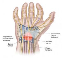#CarpalTunnelSyndrome : Carpal tunnel syndrome (CTS) is a general condition that affects the body parts of hand, wrist and in intermittent periods the whole upper extremity. Usually, these emotions create progressively and start off being more intense during the night.