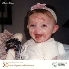 United States - Epidermolysis Bullosa Medical Research Foundation Butterfly Kids, Nu Skin, Programming For Kids, Medical Research, Best Foundation, Children, Facebook, Young Children, Boys