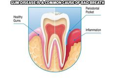 Gum Disease Is a Common Cause of Bad Breath - Gum disease occurs just below the gum line by causing the inflammation and breakdown of the tooth's attachment site and its supporting tissues. Although gum disease is a chief cause of bad breath, it is generally treatable by an oral-healthcare professional.  #GumDiseaseBadBreath,
