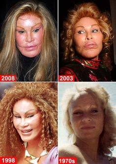 Delightful Jocelyn Wildenstein such a pretty girl to begin with and now she is just bizarr