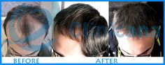 Clinicana Hair Transplant & Esthetic Center in Turkey