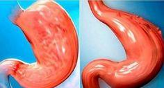 Como reduzir o estômago sem cirurgia e com um método 100% natural! O que ensinamos aqui é um conjunto de medidas que irão causar uma redução natural em seu estômago com um método 100% natural. Não …