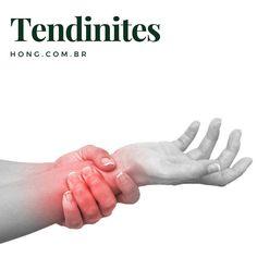 Tendinite é a inflamação de um tendão que surge usualmente através do excesso de repetições de um mesmo movimento.  As causas são diversas mas podem estar associadas a esforços intensos ou repetidos traumas mecânicos lesões esportivas ou processos degenerativos das articulações.  Pode afetar o punho cotovelo joelho quadril dentre outros locais.  O tratamento inicial geralmente inclui gelo repouso e medicamentos analgésicos e anti-inflamatórios.  A acupuntura e a terapia por ondas de choque…