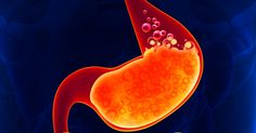 Simple Home Remedies To Relieve Acid Reflux Naturally ==>