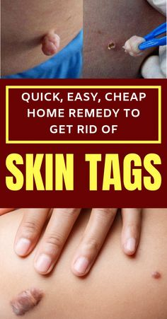 Skin tags are medically known as Acrochorda and represent small skin growths caused by rubbing or frictions. Usually, they appear on t. Natural Wart Remedies, Home Remedies, Health Remedies, Herbal Remedies, Skin Growths, Body Coach, Skin Tag Removal, Hair Removal, Healthy Brain