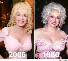 Dolly Parton Breast Implants Before After – www.celeb-surgery… Dolly Parton Brustimplantate Vorher Nachher – www. Dolly Parton Plastic Surgery, Dolly Parton Young, Most Beautiful Women, Beautiful People, Dolly Parton Pictures, Celebrity Plastic Surgery, Celebrities Then And Now, Sexy Older Women, Belleza Natural