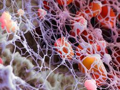 Martin Oeggerli  Fibrin is a protein created by the body that works with platelets in the blood to clot a wound. As they reach the wound site, they attach themselves to fibers, and create a mesh. Working with the platelets, they make a scab that covers the wound until it heals. Though, with the naked eye you would never guess that the process looks like this.
