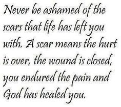 embrace your scars...
