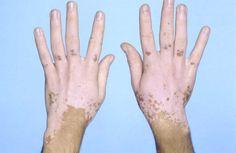 Vitiligoya Güzel Kokulu Çözüm (Lavanta) Derideki bazı