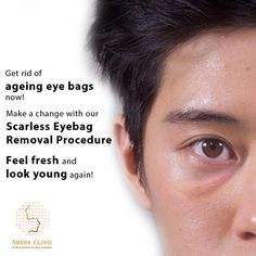 Nobody likes eye bags. They make us look tired and older than we really are, and too often, they don't get better with more sleep and a better diet. To find out more about Scarless Eyebag Removal Procedure, contact Shens Clinic now at +65 96416744. You can also learn more about the procedure from this link - http://www.shensclinic.com/…/korean-style-scarless-eyebag-…/  #eyebagremoval #eyebagformen #drshens #shensclinic #plasticsurgerysingapore #scarlesseyebag