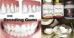 Medicinas Naturales: ¡La enfermedad de las encías es un asesino silencioso! Aquí están 8 remedios caseros para sanarlas
