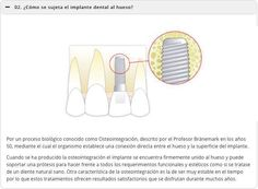¿Cómo se sujeta el implante dental al hueso ?