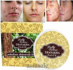 cool Effective Face Skin Care Removal Cream Mask Acne Spots Thai herbs Treatment - For Sale