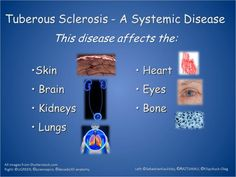 Tuberous Sclerosis, Signs And Symptoms, Getting Old, Disorders, Getting Older