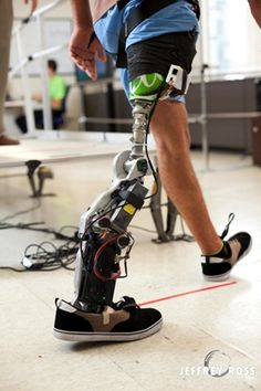 Chicago is home to cutting-edge research on prosthetics that is changing the outlook for some amputees from veterans to everyday people. #FLVS #tech #veteran