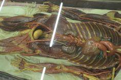 cera anatomica