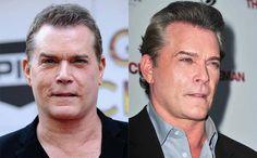 Worst celebrity breast implants photoshop