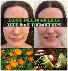 Best Dermatitis Herbal Remedies