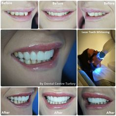 how to create smile line