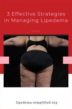 Dr. Joanna Dudek is a psychologist and researcher in Poland. In this excerpt, she talks about her research into the quality of life of women with lipedema. She describes 3 characteristics that can help women cope with their chronic condition: by managing lipedema with 3 strategies Self Compassion, Poland, Psychology, Interview, Life, Women, Psicologia, Woman