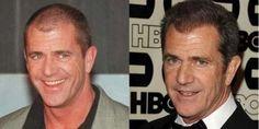Parece que Mel Gibson también se ha sometido a un #trasplantecapilar, y ¡le sienta realmente bien!
