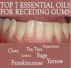 Remedies For Teeth Whitening Receding gums are a warning sign of gum disease, which can lead to loss of teeth and erosion of the jaw. With essential oils for receding gums, you can heal and re-grow your gum naturally and safely Essential Oils For Colds, Essential Oil Uses, Young Living Essential Oils, Hyssop Essential Oil, Essential Oil Storage, Coconut Oil For Teeth, Coconut Oil Pulling, Natural Teeth Whitening, Whitening Kit