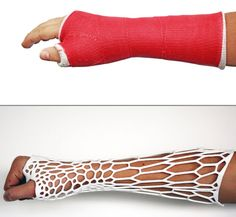 Is This Printed Cast the Future of Healing Broken Bones Ankle Cast, Arm Cast, Creative Inventions, 3d Printing Business, Medical Design, Broken Leg, Wearable Device, Medical Technology, Design Girl