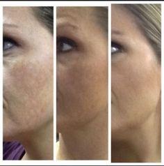 Neirum real results skin tone http://amandaward.arealbreakthrough.com/