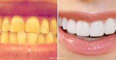 Get Sparkling White Teeth In Two Minutes Flat