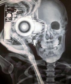 x-ray photography.