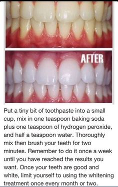 home remedies for white teeth