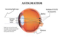 ray light passing an eye diagram ray light passing an eye diagram ccuart Choice Image