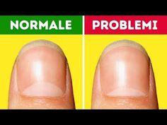 13 problemi di salute di cui le tue unghie ti avvisano - YouTube