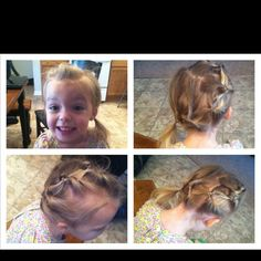 Hairstyle for a little girl with thin hair. My daughter has loose anagen syndrome and finding cute styles that work for her is challenging. This style is easy, works with her Different lengths of hair.