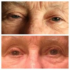 Liza's grandma.....I gave my grandma a little of the lip and eye cream to try. She had about two weeks worth and ran out about 2 weeks ago. Look at how drastically it has worked around her eyes!  www.holywraps.com