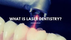 What Is Laser Dentistry? Laser Dentistry, Downtown Toronto, Cavities, Dental Care, Surgery, Conditioner, Number, Type, Learning