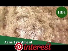 Great Removal Blackheads On The Face Easy Big Pimple, Blackhead Remover, Pimples, Bolivia, Beauty Hacks, How To Remove, Face, Projects, Dots