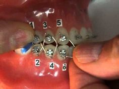 dentaltown orthodontic jaw wiring ojw for weight control in the rh pinterest com jaw wiring for weight loss in south africa jaw wiring weight loss uk