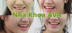 Niềng răng là vấn đề đang được rất nhiều người quan tâm trong những năm gần đây. Tuy nhiên, để tìm được một địa chỉ niềng răng uy tín ở TP.HCM