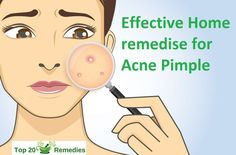 pimples is a little pustule or papule which is triggered by the extreme production of sebumor all-natural skin oil that creates blocked pores resulting in red, puffy aswell as pus-filled sores Pimples Under The Skin, How To Get Rid Of Pimples, Back Acne Treatment, Home Remedies For Pimples, Acne Remedies, Natural Remedies, Pimple Solution, Pimples On Forehead