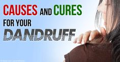 Dry skin and fungus or yeast overgrowth are common causes of dandruff; increasing your intake of omega-3 fats will help solve these causes of dandruff. http://articles.mercola.com/sites/articles/archive/2015/09/07/home-remedies-for-dandruff.aspx