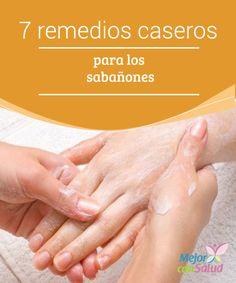 7 remedios caseros para los sabañones Si hay algo molesto que puede afectar tanto a los dedos de las manos como a los de los pies eso son los sabañones.