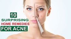 Top 10 Surprising Natural & Easy home remedies for acne 2019 Home Remedies For Acne, Acne Remedies, 10 News, Top, Acne Treatment, Crop Shirt, Shirts