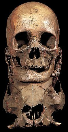IFUGAO TRIBE: HEADHUNTING HUMAN TROPHY SKULL LASH MOUNTED ON THE TOP HALF OF A BOAR'S SKULL HUMAN BONE, RATTAN, BOAR'S SKULL THE IFUGAO TRIBE, FROM THE PHILIPPINES, MOUNT THE SKULLS OF THEIR HEADHUNTED HUMAN VICTIMS ON SKULLS OF SACRIFICED BOARS.