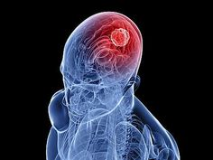 Fact of the day # 13: No two brain tumors are alike.  Prognosis is dependent on several factors including: tumor type, location, response to treatment, age and overall health status.