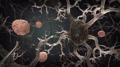 There is currently no cure for Alzheimer's disease, but there is a lot that can be done to enable someone to live well with the condition. This will involve pharmaceutical, psychiatric support and activities.  However, this will alleviate the condition not avoid it, therefore multiple research programmes around the world are working towards a cure for this disease.  Now, a study from researchers at Georgetown University shows that long-term resveratrol usage in people with mild to moderate…