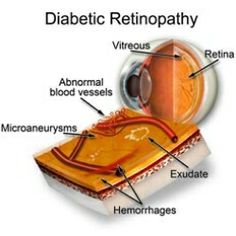 How To Treat Diabetic Blindness