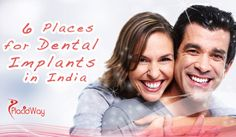 6 Places for Affordable Dental Implants in India!