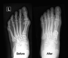 Before and after pics for bunion surgery. #Lapidus procedure