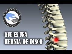 79 Ideas De L5 S1 Hernia Discal Hernia Discal Hernias De Disco Ejercicios